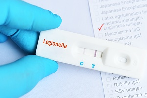 legionella test in water from a healthcare building in new york city
