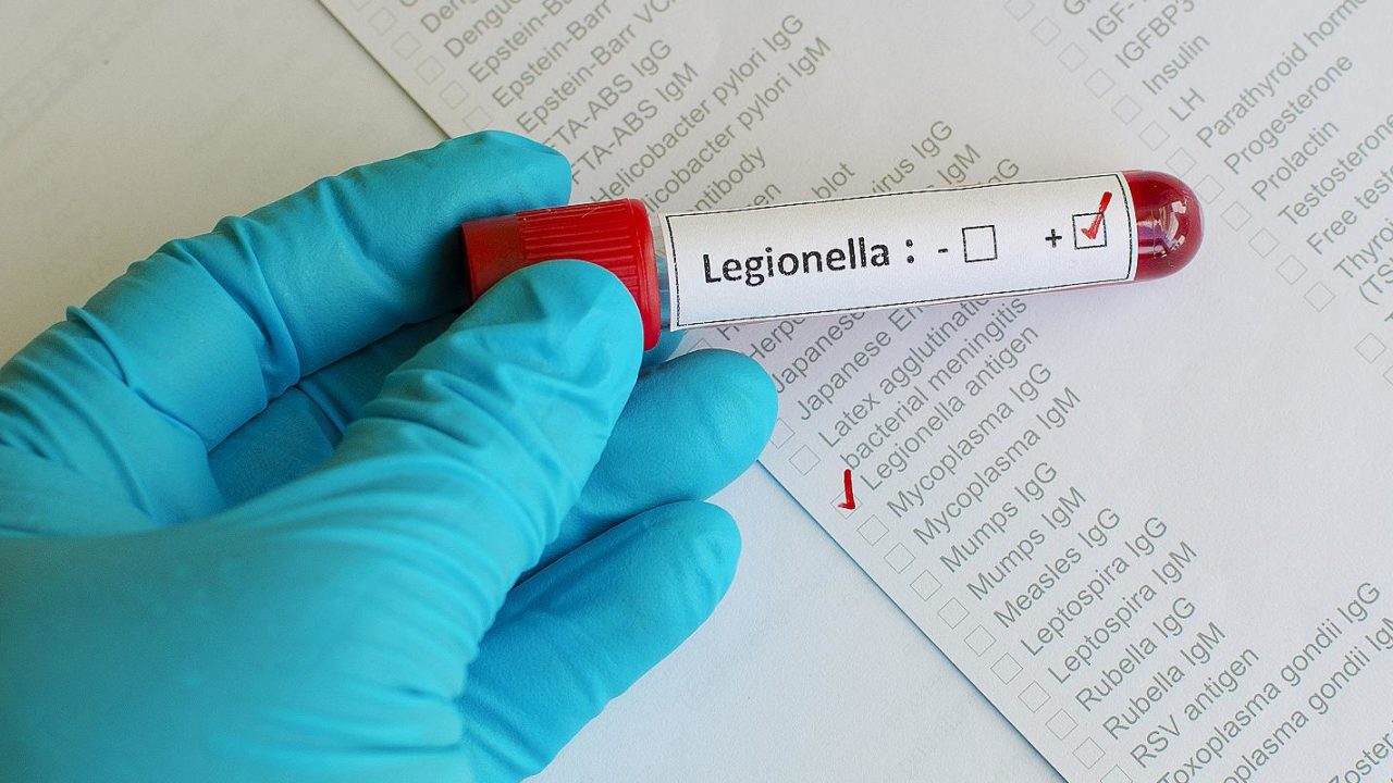 Blood sample that has tested positive for Legionella